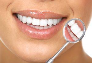 Zahnuzusatzversicherung-Versicherungslexikon